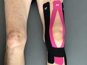 knee-injury-kt-tape-Best-800x600-min